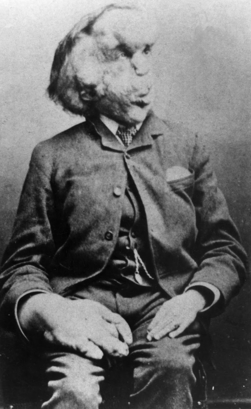 Joseph_Merrick._1889